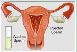 Of washing Success sperm